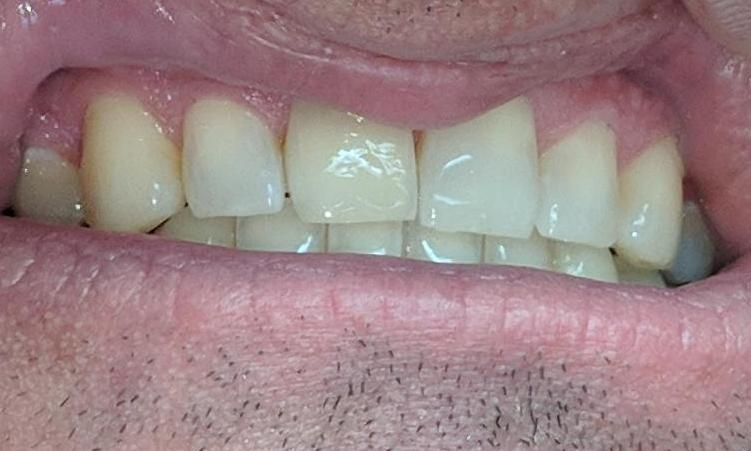 Invisalign-to-Close-Spaces-After-Image