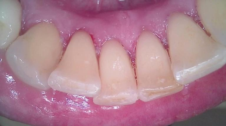 Teeth-Cleaning-After-Image