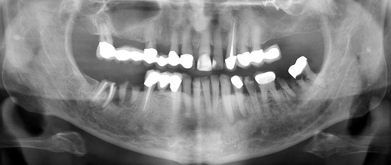 Implant-Retained-Dentures-Before-Image