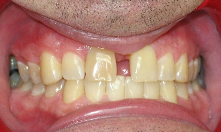 Invisalign-to-Close-Spaces-Before-Image